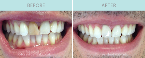 Case Studies Forest Dental In Loughton